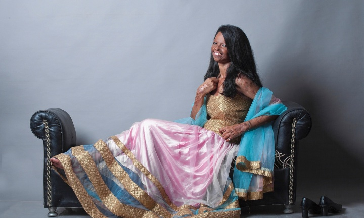 In this Aug. 4, 2014 photo provided by Rahul Saharan, Indian acid attack victim Laxmi, 22, poses during a fashion photo shoot in New Delhi, India. Laxmi was 15 years old when she was attacked by her brother's 32-year-old friend after she refused his marriage proposal. The fashion photo shoot featuring five acid attack victims is drawing wide attention in India, where open discussions about violence against woman are drawing attention to a long-ignored public scourge. (AP Photo/Rahul Saharan)
